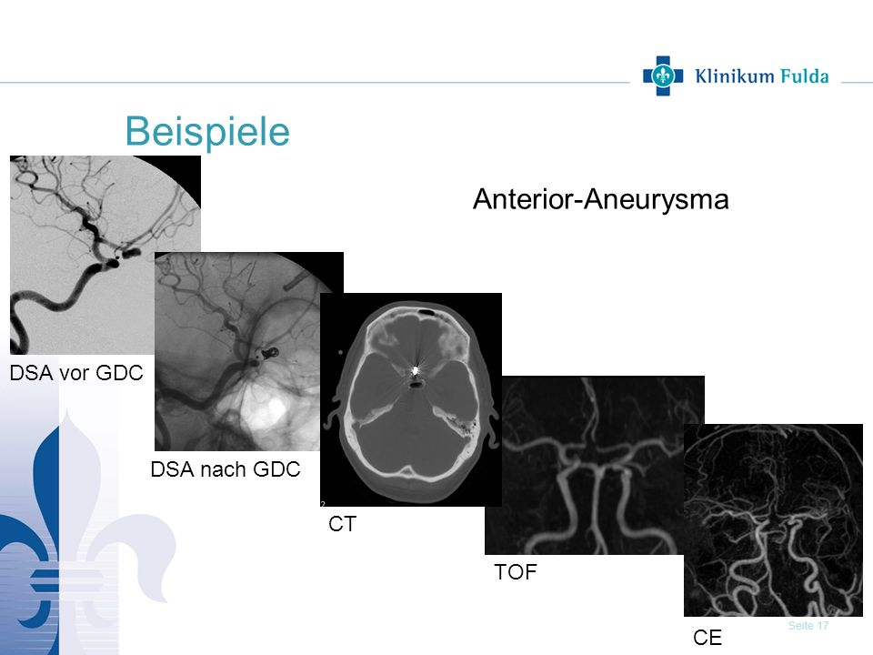 Beispiele Anterior-Aneurysma DSA vor GDC DSA nach GDC CT TOF CE 17