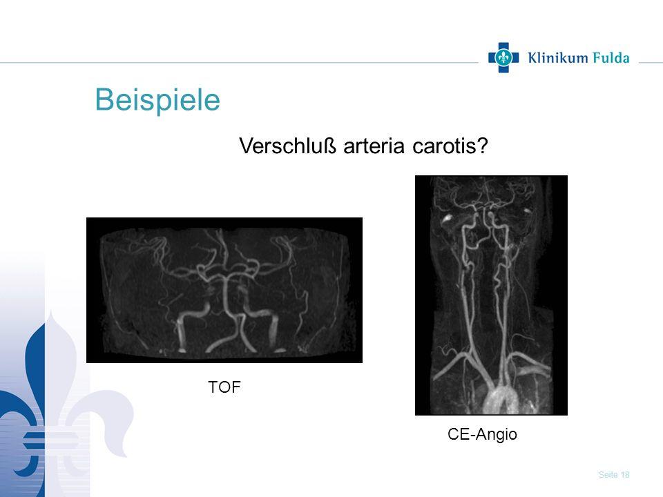 Beispiele Verschluß arteria carotis TOF CE-Angio 18
