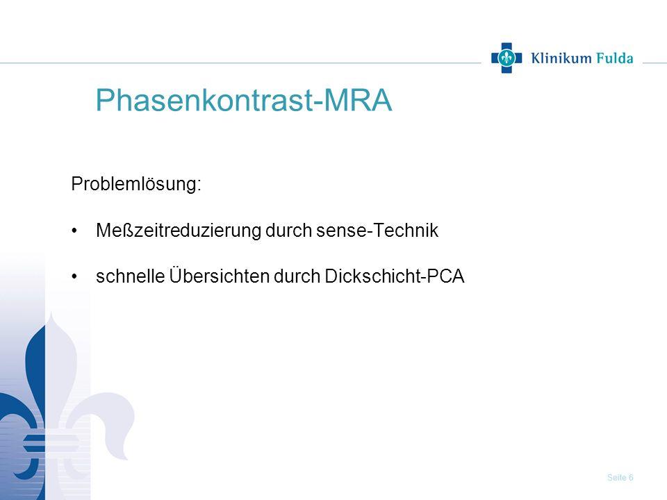 Phasenkontrast-MRA Problemlösung: