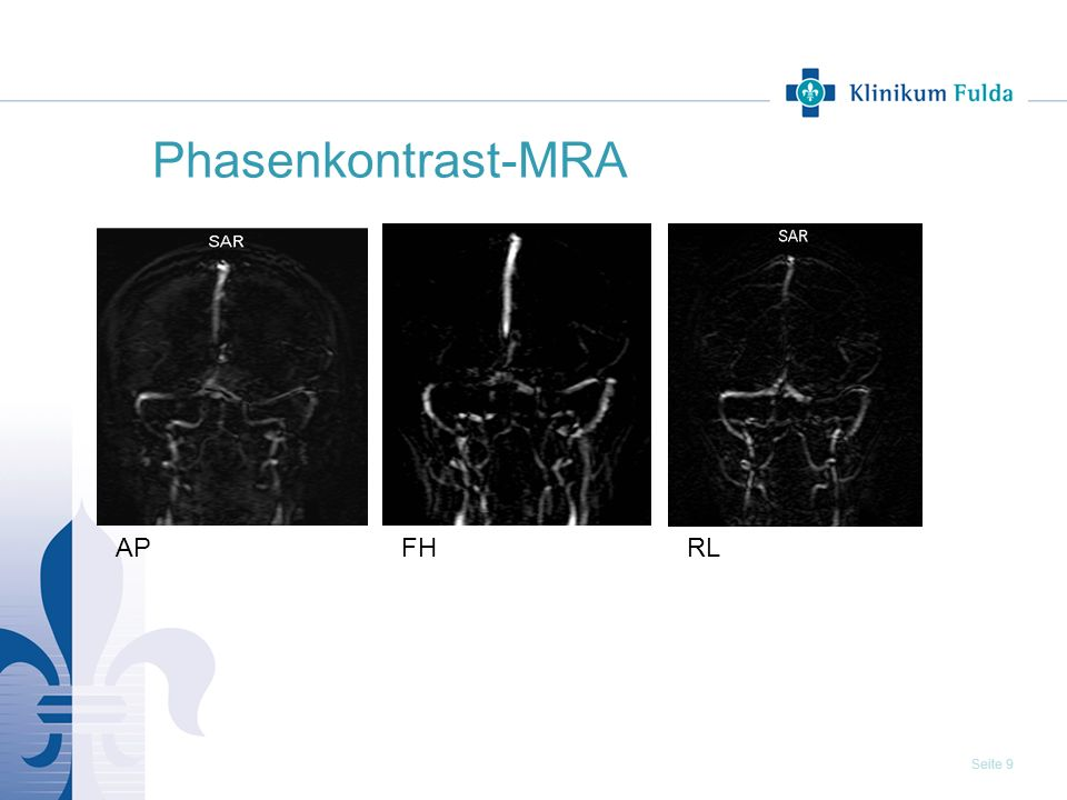 Phasenkontrast-MRA AP FH RL 9