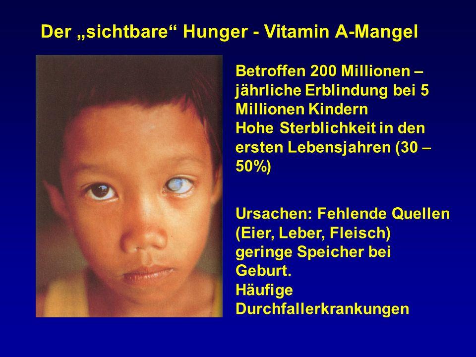 """Der """"sichtbare Hunger - Vitamin A-Mangel"""