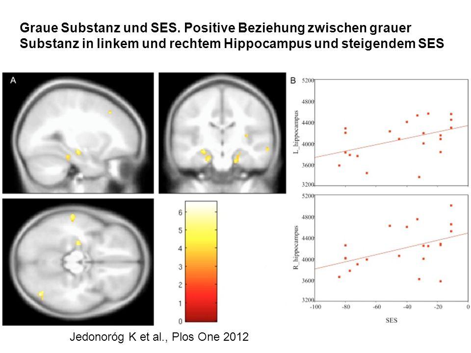 Graue Substanz und SES. Positive Beziehung zwischen grauer Substanz in linkem und rechtem Hippocampus und steigendem SES