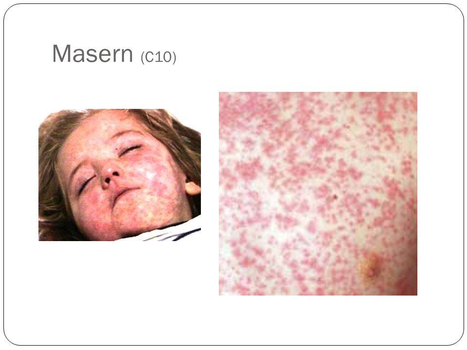 Masern (C10)