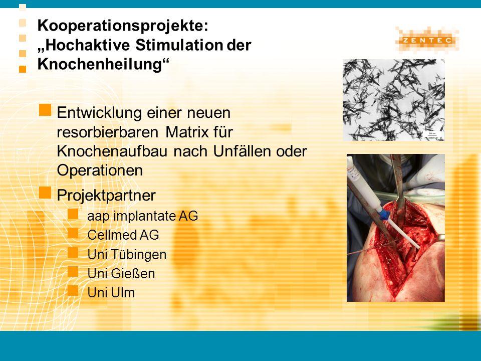 """Kooperationsprojekte: """"Hochaktive Stimulation der Knochenheilung"""