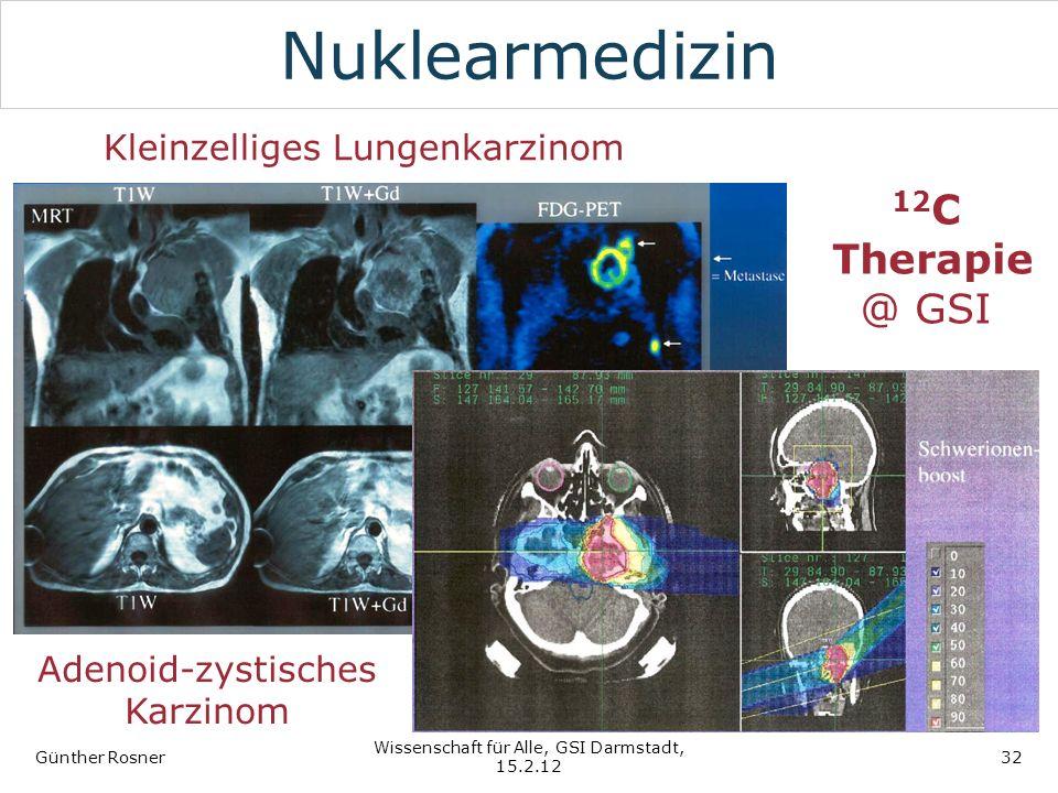 Nuklearmedizin 12C Therapie @ GSI Kleinzelliges Lungenkarzinom