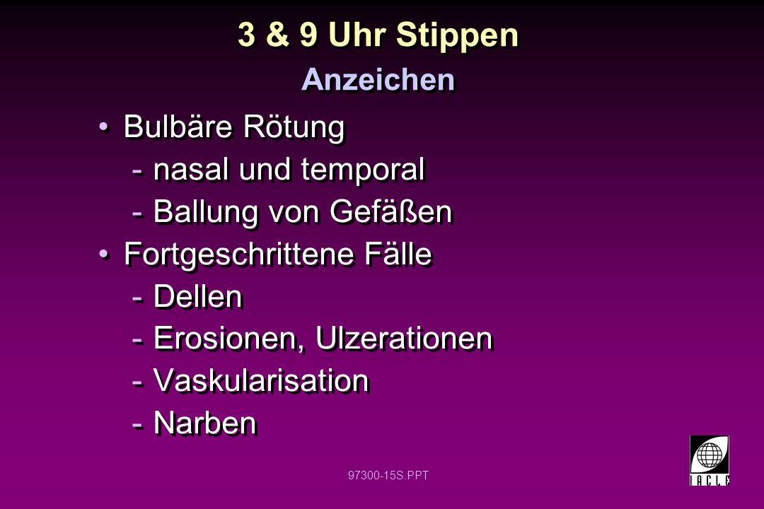 3 & 9 Uhr Stippen Bulbäre Rötung nasal und temporal