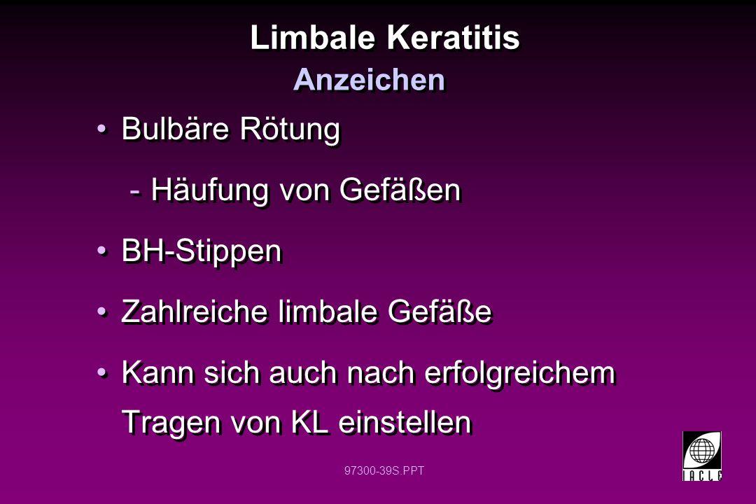 Limbale Keratitis Bulbäre Rötung Häufung von Gefäßen BH-Stippen