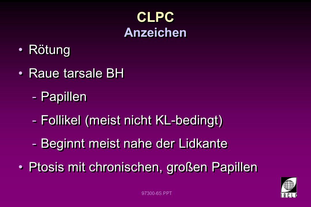 CLPC Rötung Raue tarsale BH Papillen Follikel (meist nicht KL-bedingt)