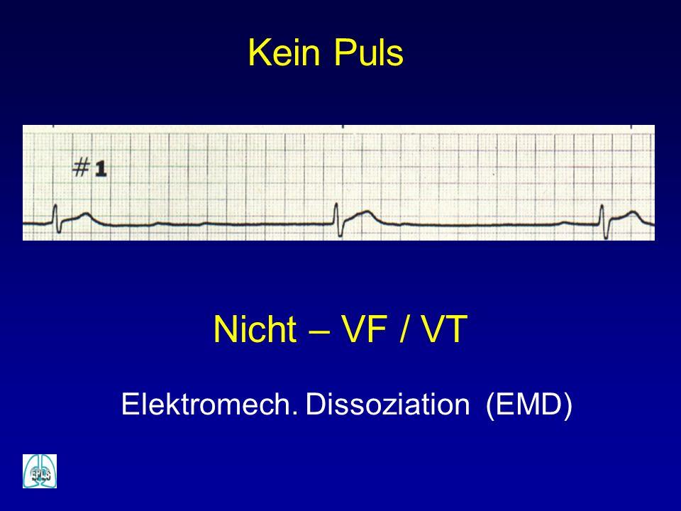 Elektromech. Dissoziation (EMD)