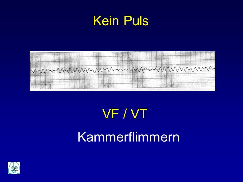 Kein Puls VF / VT Kammerflimmern