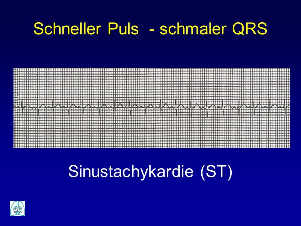 Schneller Puls - schmaler QRS