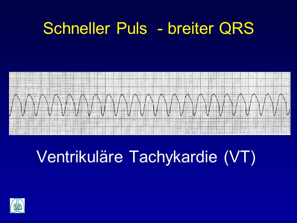 Schneller Puls - breiter QRS