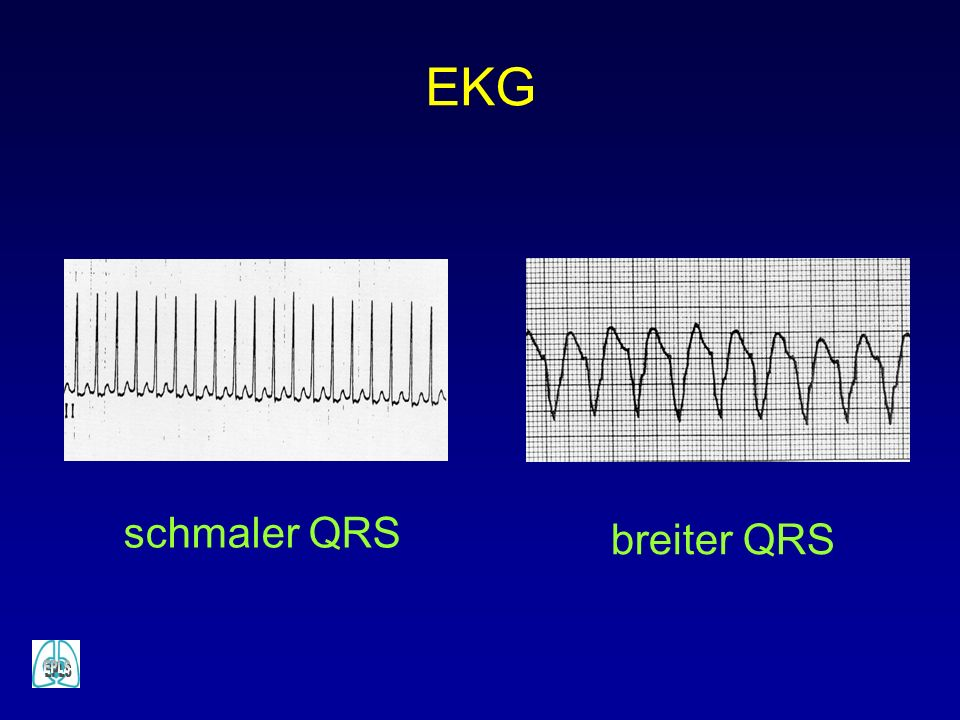 EKG schmaler QRS breiter QRS