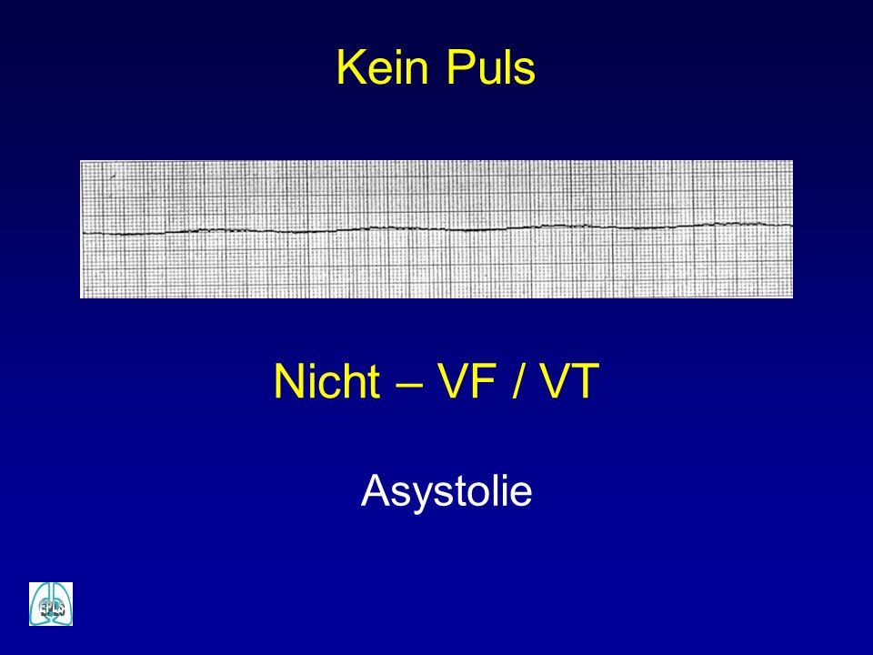 Kein Puls Nicht – VF / VT Asystolie