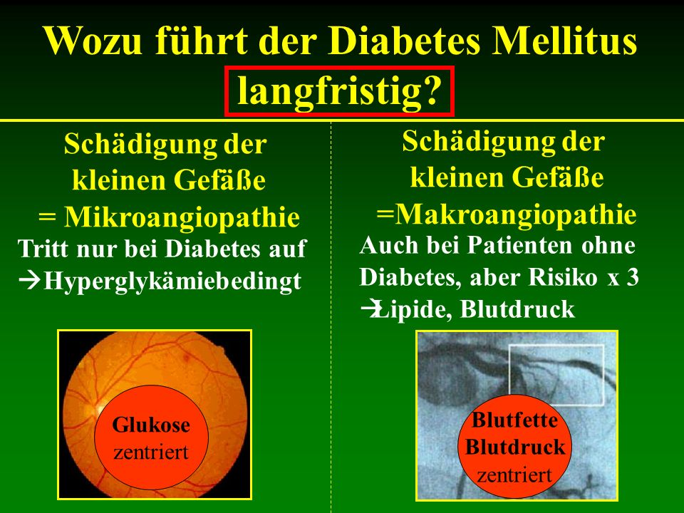 Wozu führt der Diabetes Mellitus