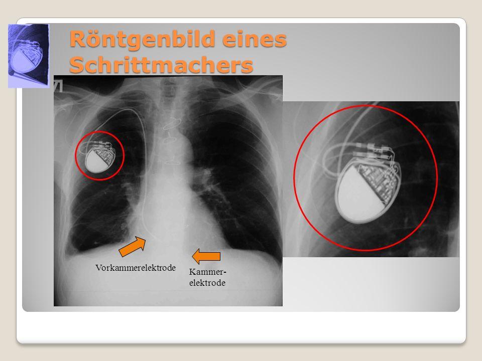 Röntgenbild eines Schrittmachers