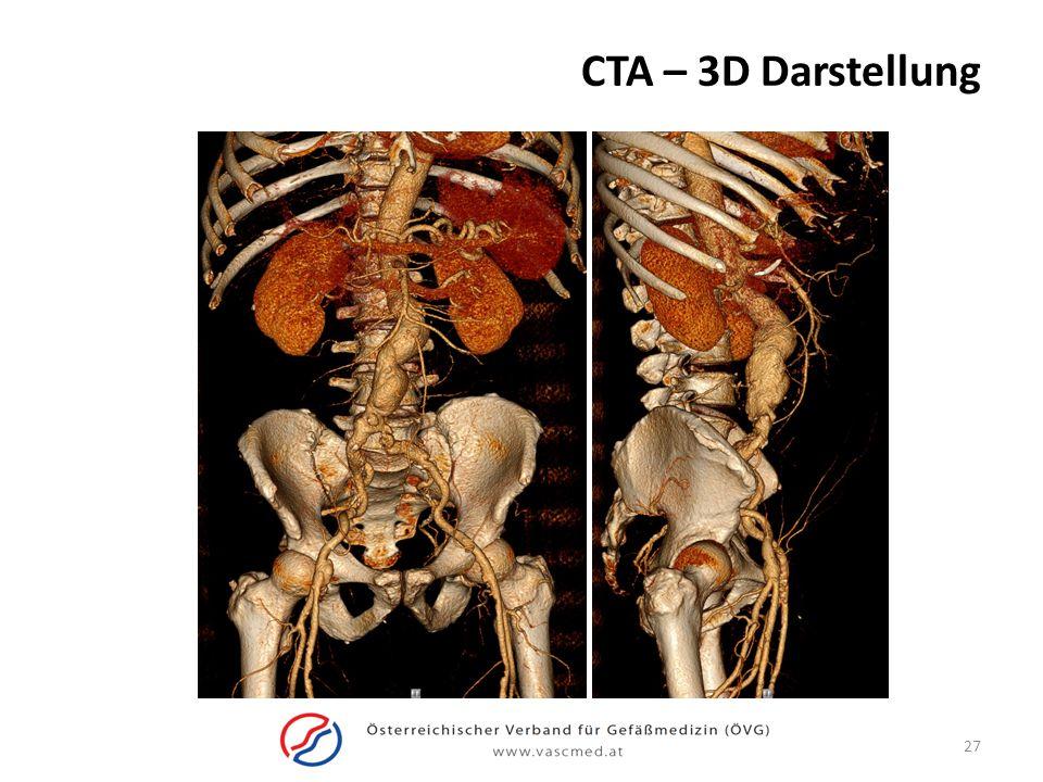 CTA – 3D Darstellung
