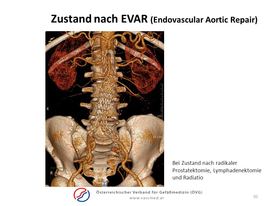 Zustand nach EVAR (Endovascular Aortic Repair)