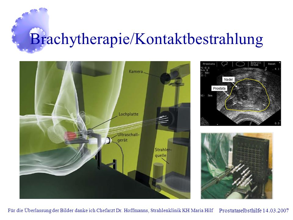 Brachytherapie/Kontaktbestrahlung