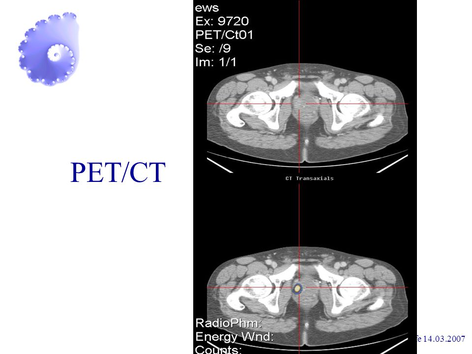 PET/CT Prostataselbsthilfe 14.03.2007