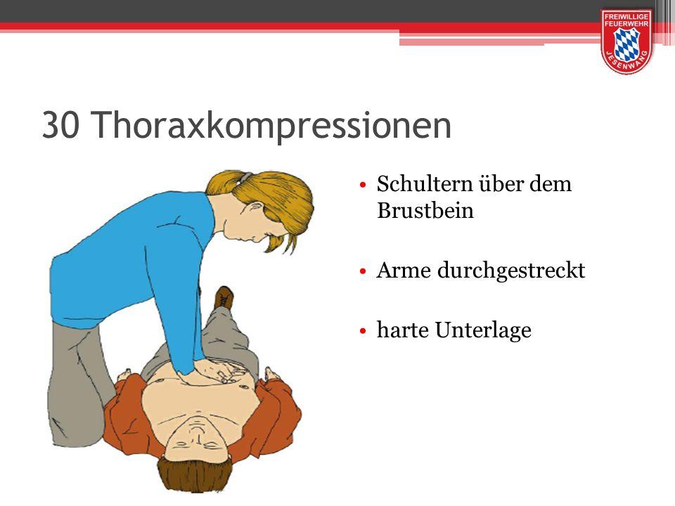 30 Thoraxkompressionen Schultern über dem Brustbein