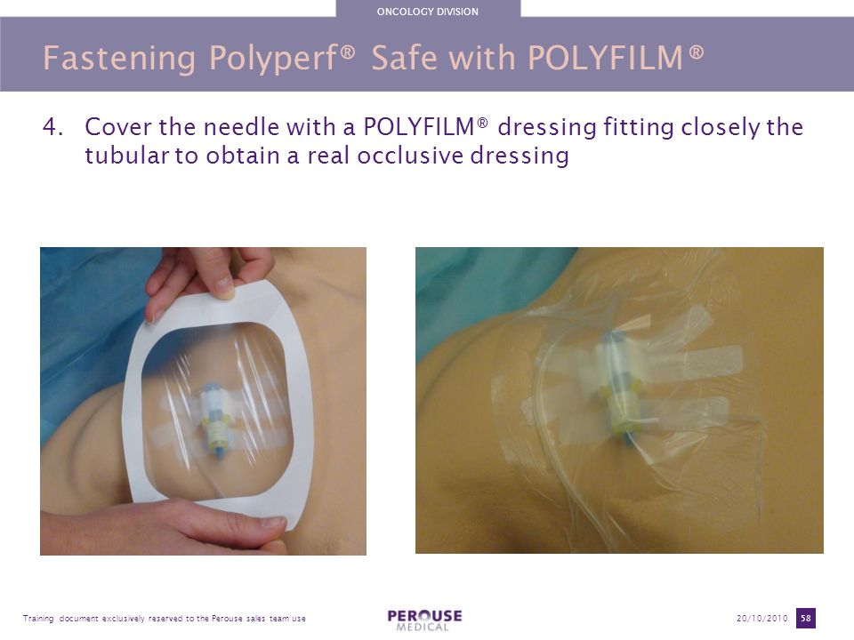 Fastening Polyperf® Safe with POLYFILM®