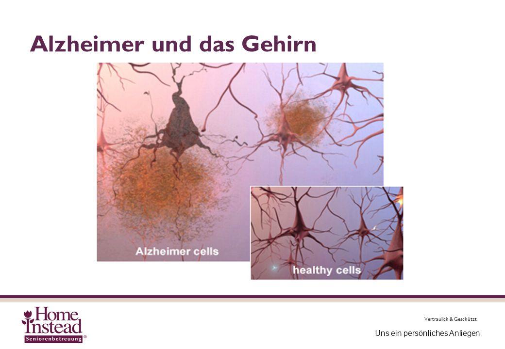 Alzheimer und das Gehirn
