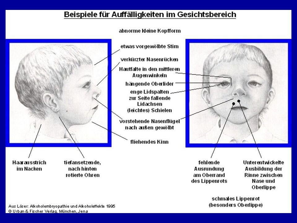 Eine charakteristische Gesichtsauffälligkeit (kraniofaziale Dysmorphie)