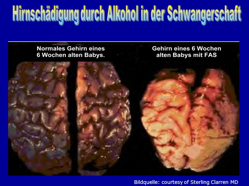 Hirnschädigung durch Alkohol in der Schwangerschaft