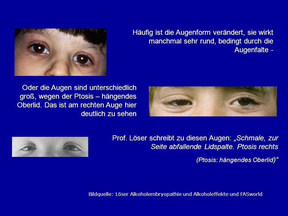 Häufig ist die Augenform verändert, sie wirkt manchmal sehr rund, bedingt durch die Augenfalte -