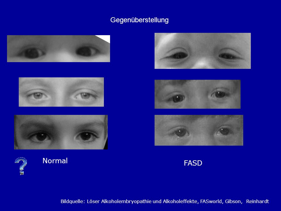 Gegenüberstellung Normal FASD