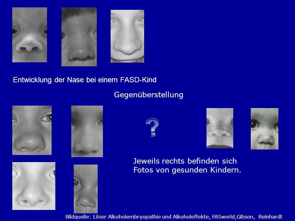 Entwicklung der Nase bei einem FASD-Kind