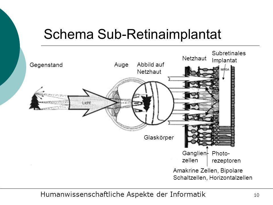 Schema Sub-Retinaimplantat