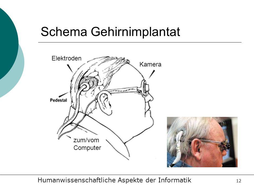 Schema Gehirnimplantat