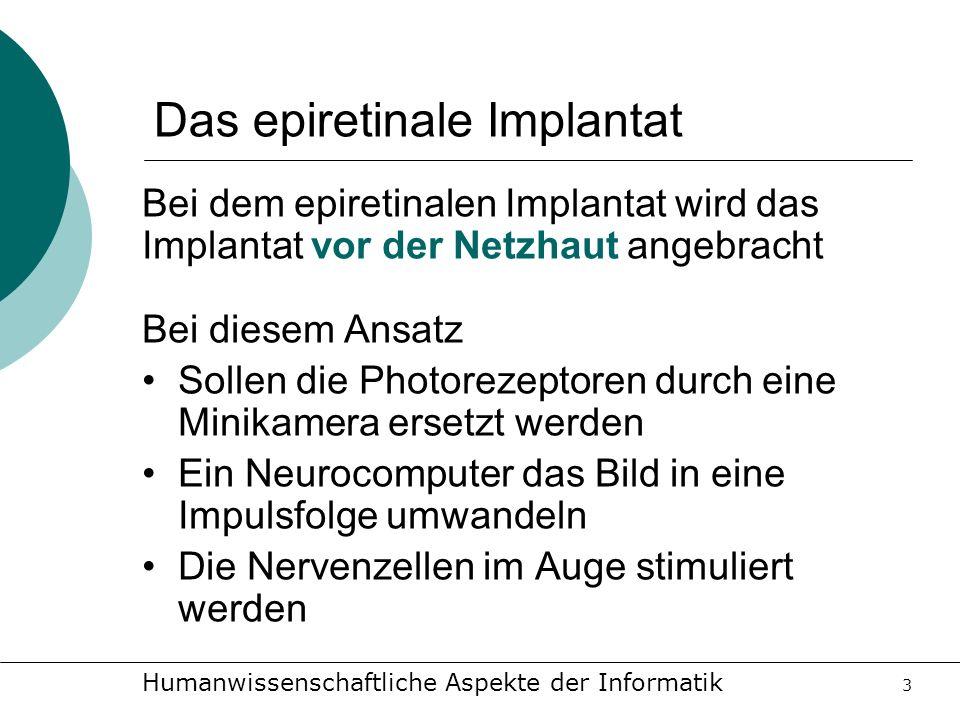 Das epiretinale Implantat