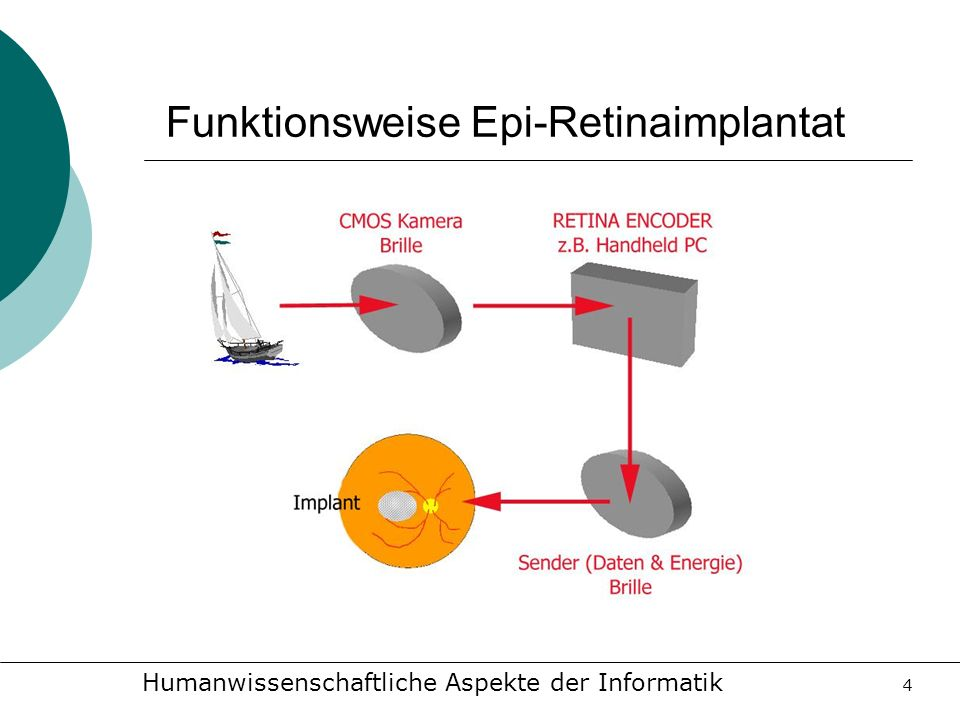 Funktionsweise Epi-Retinaimplantat