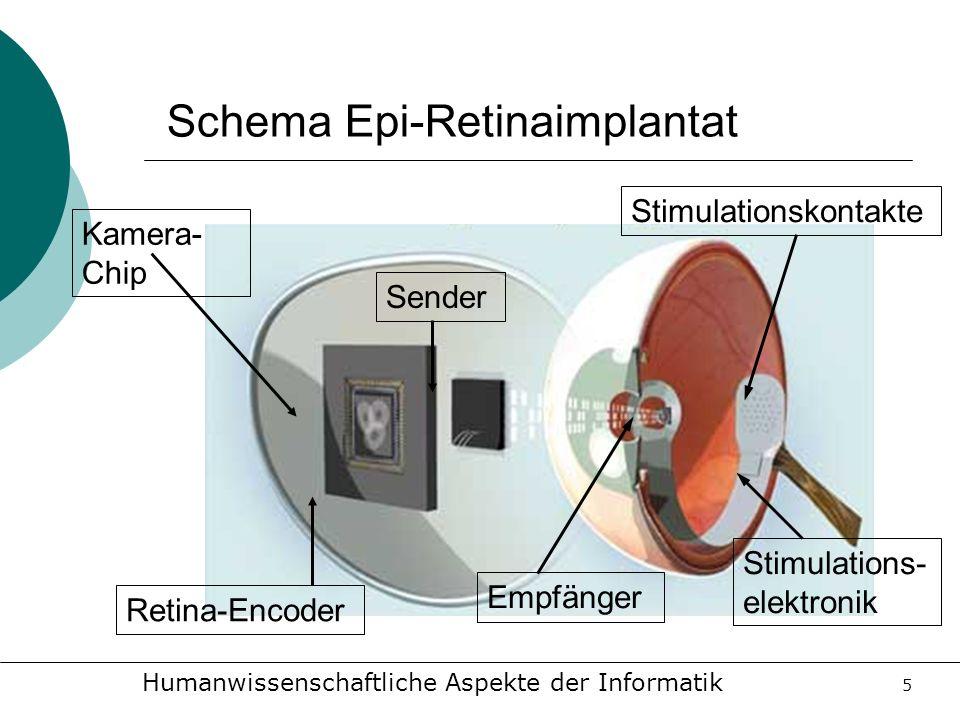 Schema Epi-Retinaimplantat