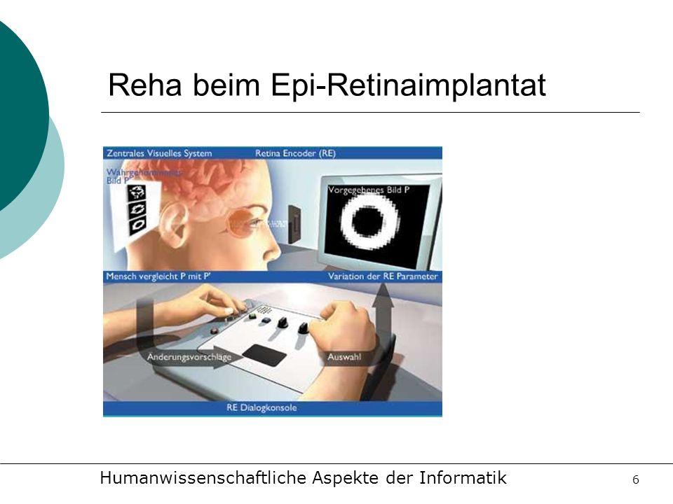 Reha beim Epi-Retinaimplantat