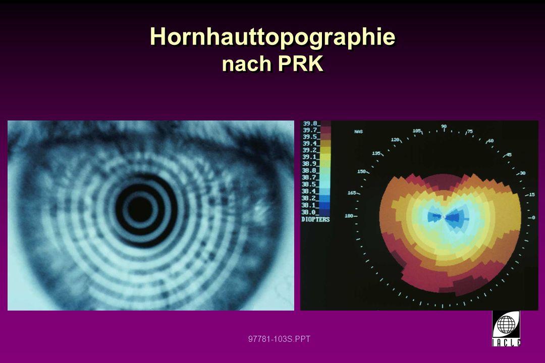 Hornhauttopographie nach PRK