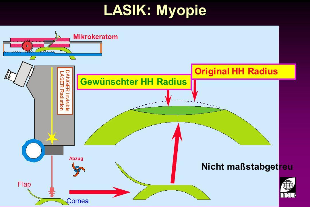 LASIK: Myopie Original HH Radius Gewünschter HH Radius