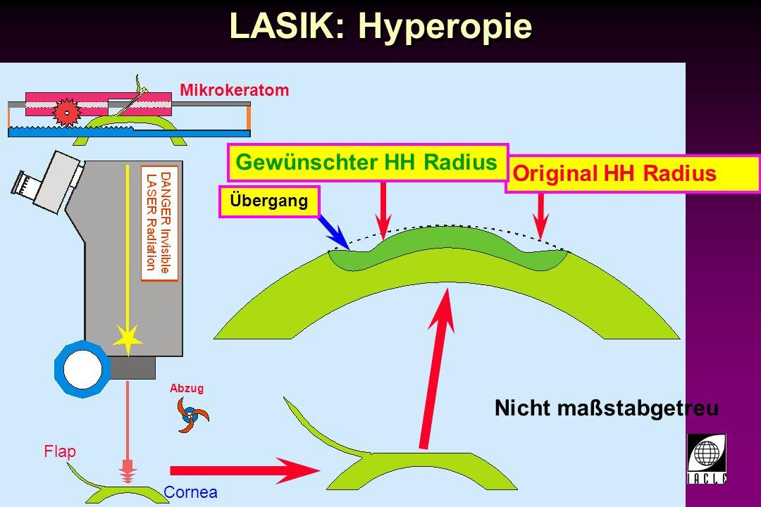 LASIK: Hyperopie Gewünschter HH Radius Original HH Radius