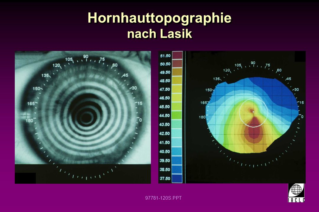 Hornhauttopographie nach Lasik