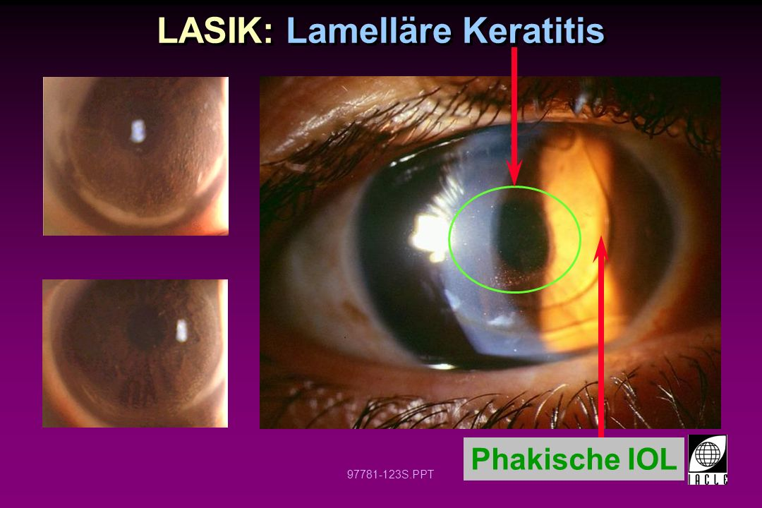 LASIK: Lamelläre Keratitis