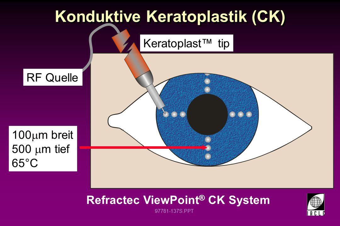 Konduktive Keratoplastik (CK)