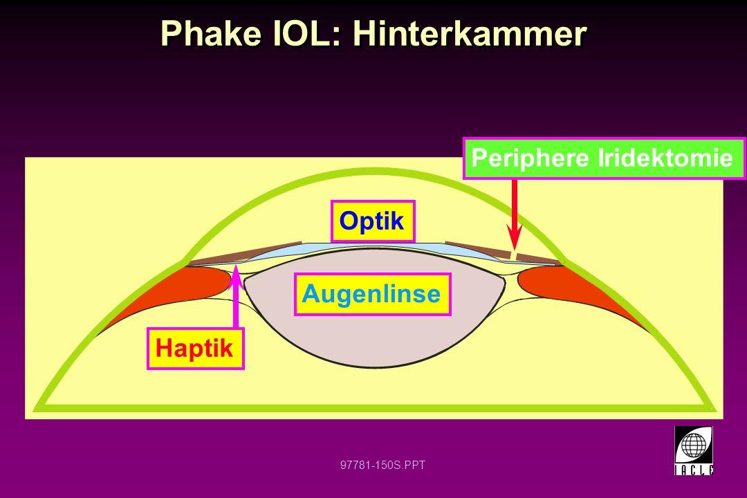 Phake IOL: Hinterkammer