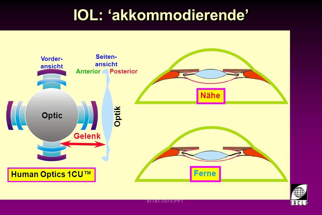 IOL: 'akkommodierende'