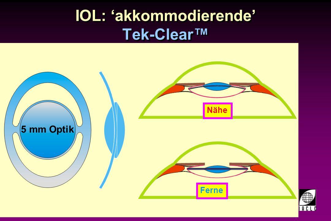 IOL: 'akkommodierende' Tek-Clear™