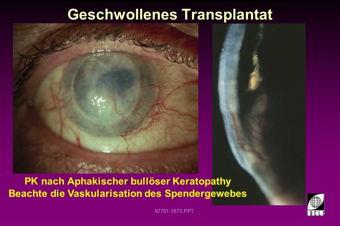 Geschwollenes Transplantat