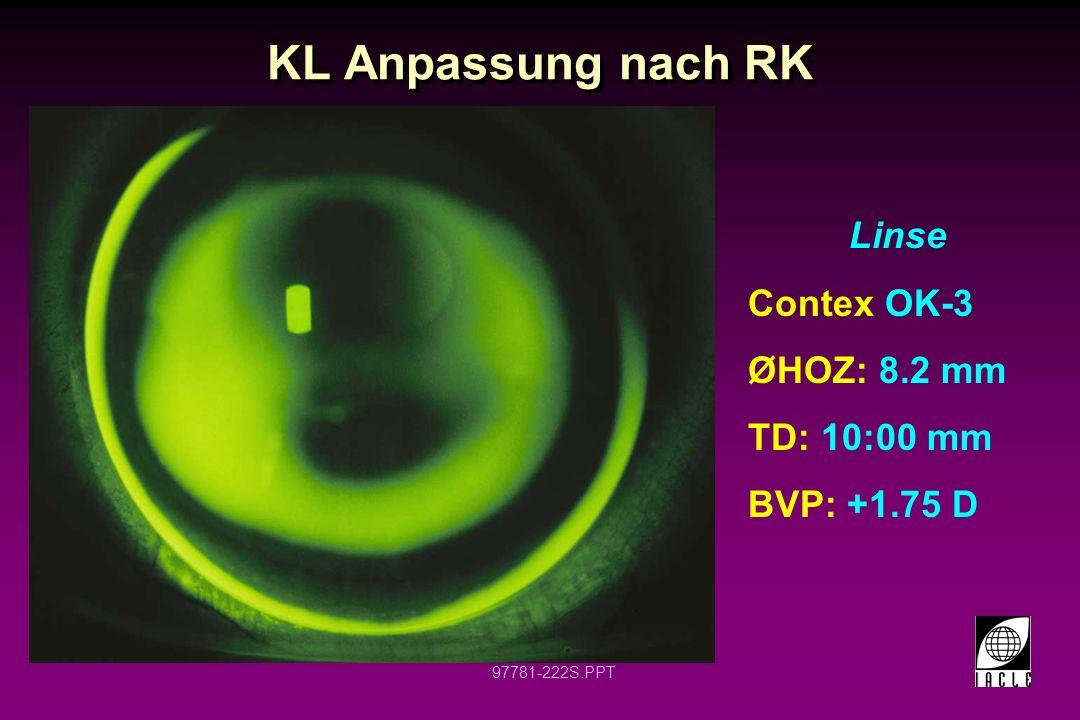 KL Anpassung nach RK Linse Contex OK-3 ØHOZ: 8.2 mm TD: 10:00 mm