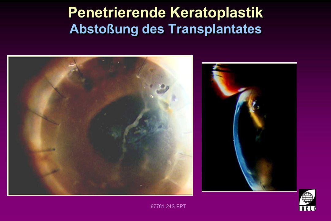 Penetrierende Keratoplastik Abstoßung des Transplantates